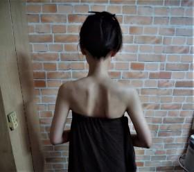 3肩甲骨 (2)